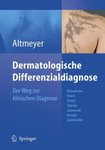 Dermatologische Differenzialdiagnose by P. Altmeyer